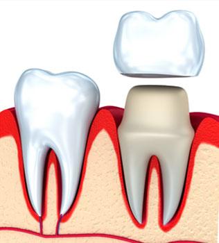 Dental Crowns in Snellville, GA