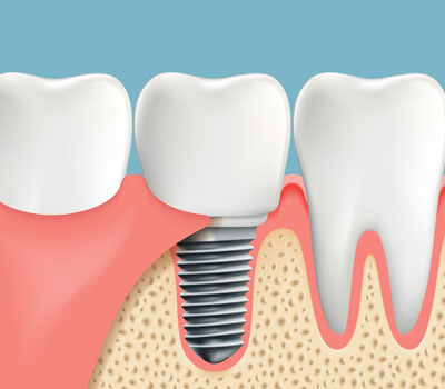 Tooth Implants in Snellville GA