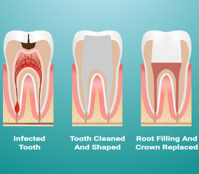 Root Canal Treatment in Snellville, GA