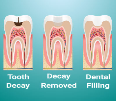 Dental Fillings in Snellville, GA