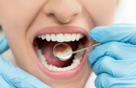 Dental Exams and Cleanings in Snellville, GA