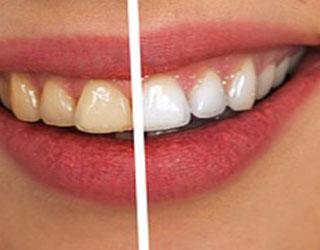 Dental Whitening in Snellville GA